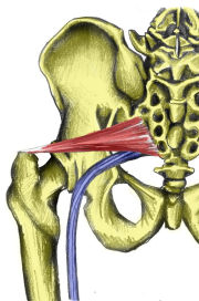 180piriformis_syndrome
